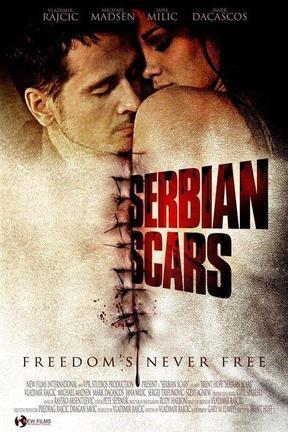 Cicatrices serbias